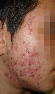 Acne Exoriations