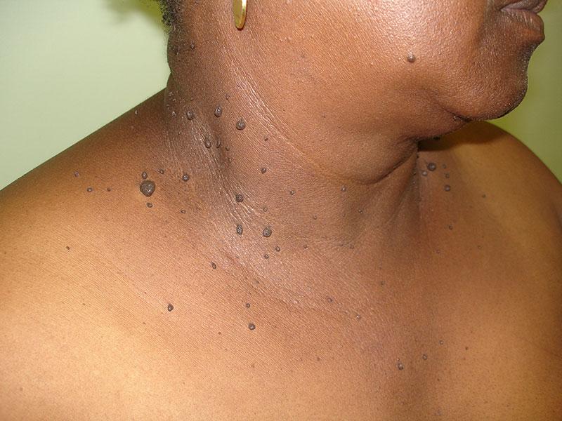 Dermatosis Papulosa