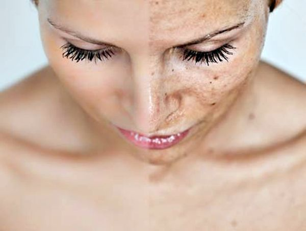 chemical peel aesthetic clinic